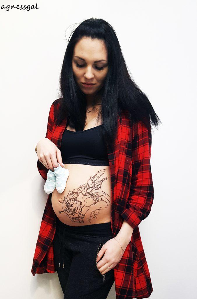 Blaski i cienie ciąży, kolka nerkowa, cewnik DJ, double J