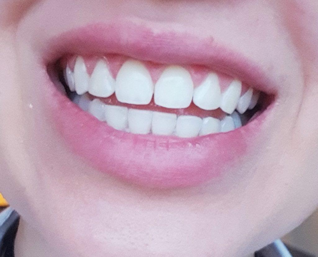 Moje leczenie ortodontyczne + wybielanie zębów metodą gabinetową